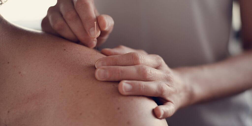 service médecine chinoise acupuncture Pontarlier Doubs